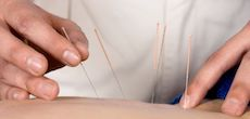 Acupuncture in Downtown Toronto at The [Clinic] - Icon